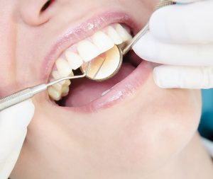 Tooth By Tooth Examination