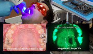 Velscope Oral Cancer Screening04